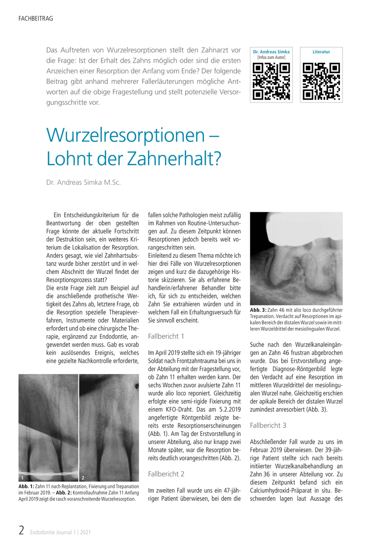 Fachbeitrag von Dr. Andreas Simka: Wurzelresorptionen – Lohnt der Zahnerhalt? Endodontie Journal 1 | 2021