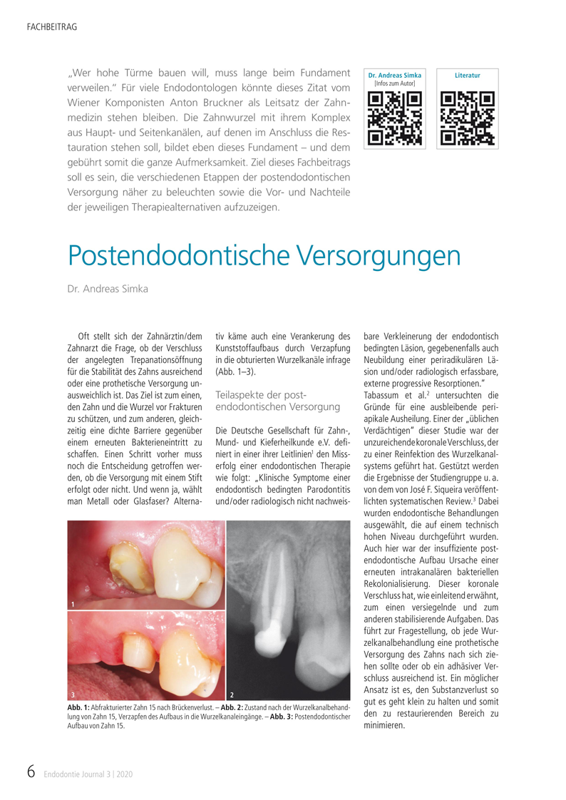 Fachbeitrag von Dr. Andreas Simka: Postendodontische Versorgungen, Endodontie Journal 3 | 2020
