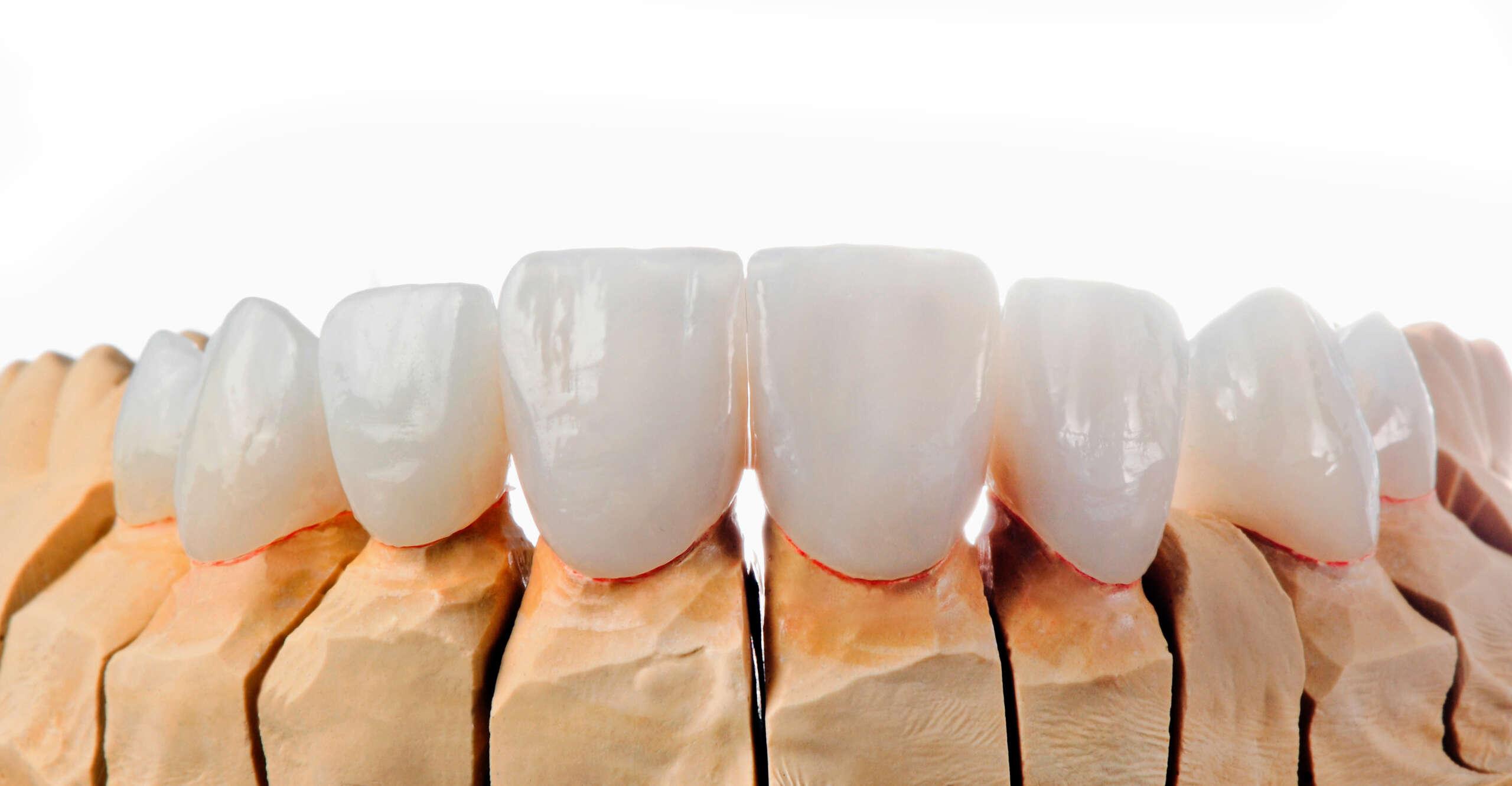 Dental Veneers Zahnmodell